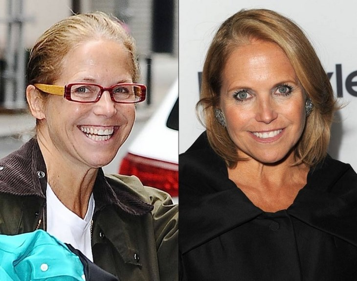 Has Katie Couric Had Plastic Surgery