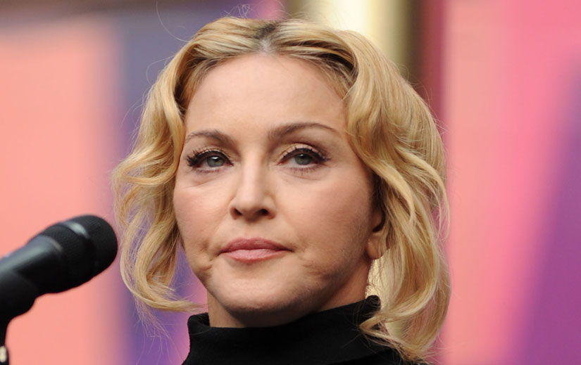 madonna plastic surgery after